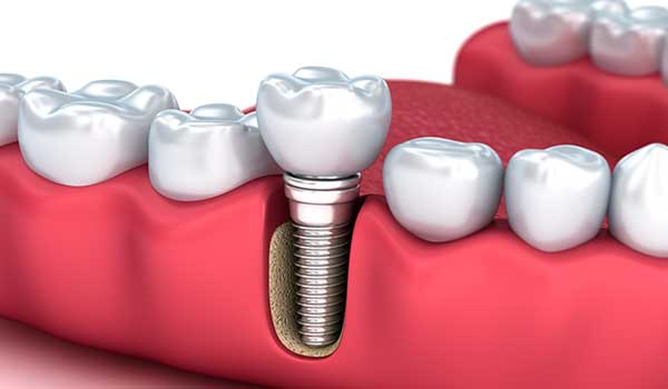 Diamond Bar Dental Implants
